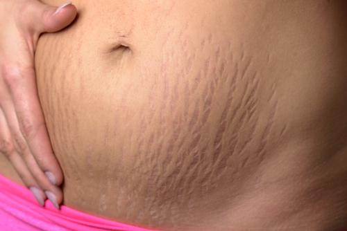 Lichamelijk ontzwangeren